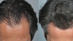 hair-transplant-procedure-photos-top-169582.jpg